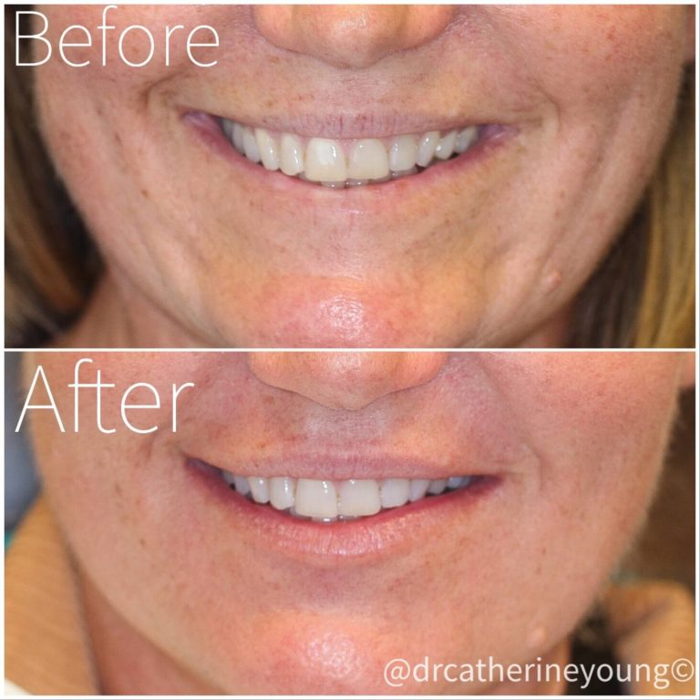 dermal-filler-before-after-2