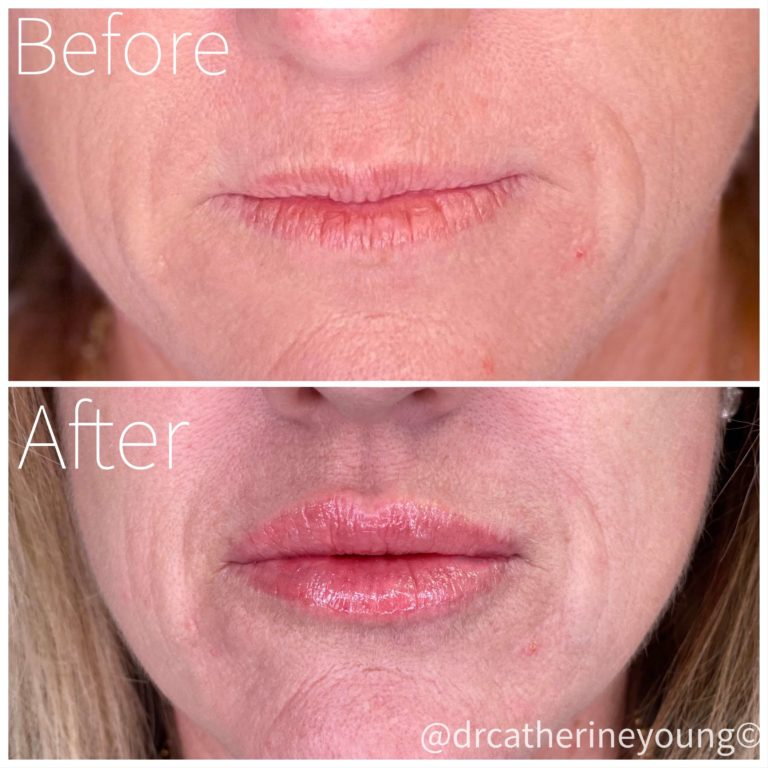 dermal-filler-before-after-3
